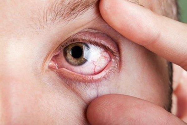 К чему снятся больные глаза. Глаза во сне не можешь открыть: толкование сонников