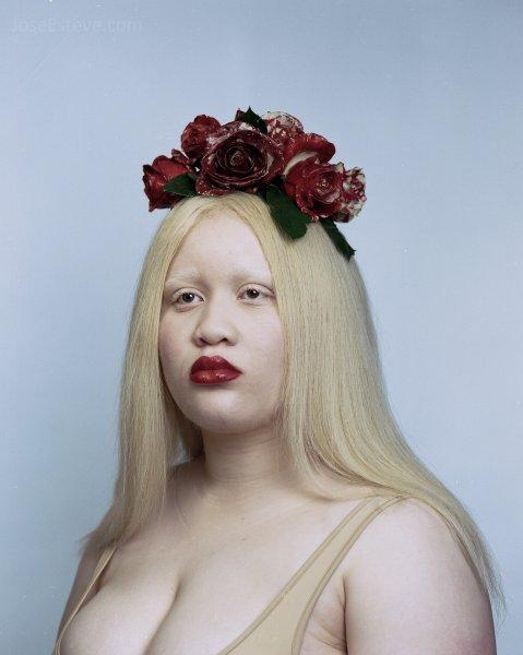 Рушим стандарты красоты: Модели с генетическими особенностями завоевали мировые подиумы