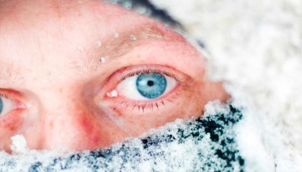 Тюменец отморозил ухо, долго гуляя без шапки в холодную погоду