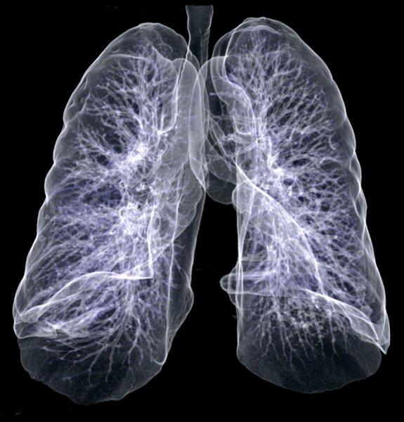 Американские ученые обнаружили бактерии, которые ускоряют рак легких