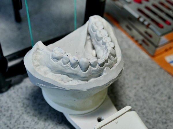 Костяной протез: Ученые научились создавать челюсть из ребра